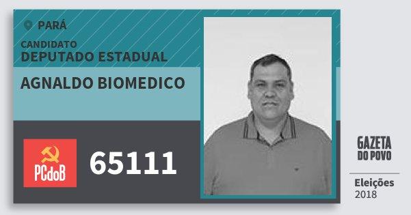 Santinho Agnaldo Biomedico 65111 (PC do B) Deputado Estadual | Pará | Eleições 2018